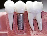 Dental Implants Englewood, NJ